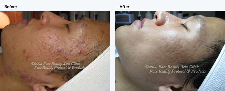 Face Reality Combined Acne