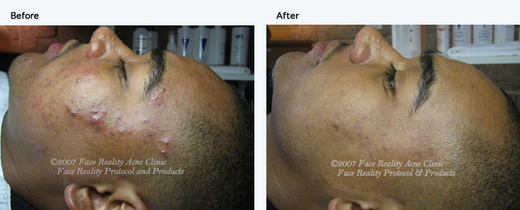 inflamed acne hyperpigmentation small