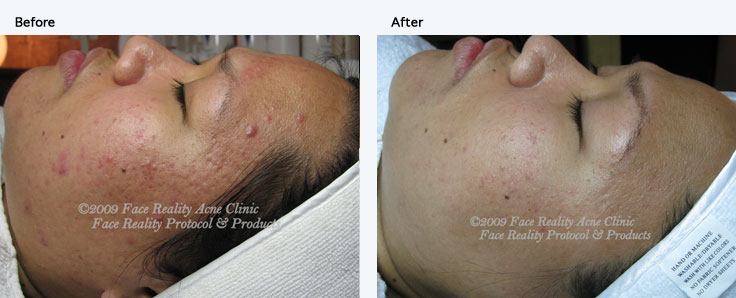 inflamed acne small